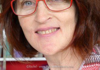 fin orthodontie sourire sans bagues ni fil